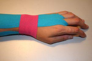 Fertig getaptes Handgelenk bei Sehnenscheidenentzündung