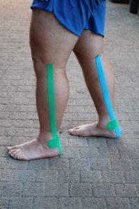Achillessehne tapen Seitenansicht