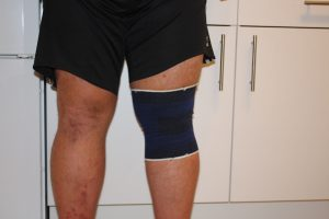 Alternative zum Knie tapen - Kniebandage